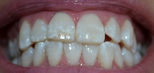 Client's teeth after Wicked White Whitening.  December 2014  Results will vary person to person!